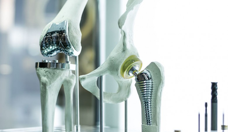 Ученые в Сибири разрабатывают защиту имплантатов костей и суставов от инфекций
