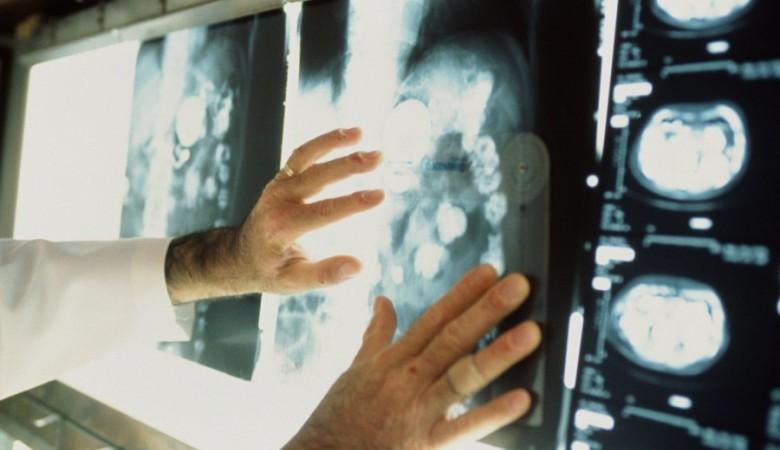 Сибирские ученые научились диагностировать и лечить рак курильщиков с помощью металла